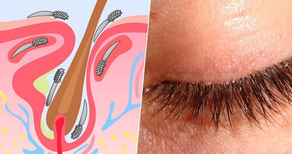 In most cases Blepharitis is caused by Demodex and needs an aggressive management by doctors & patients