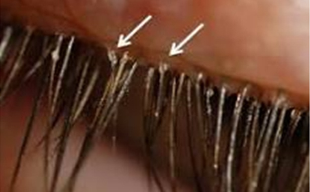 Know more about Blepharitis, Causes and managing Eyelid Hygiene.