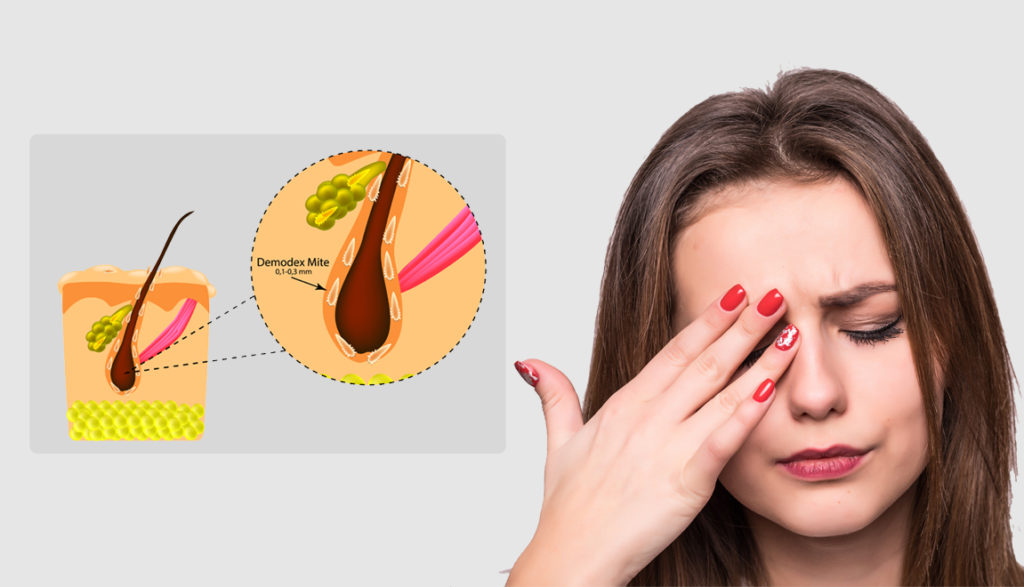 Know the mites those causing discomforts in your eyes