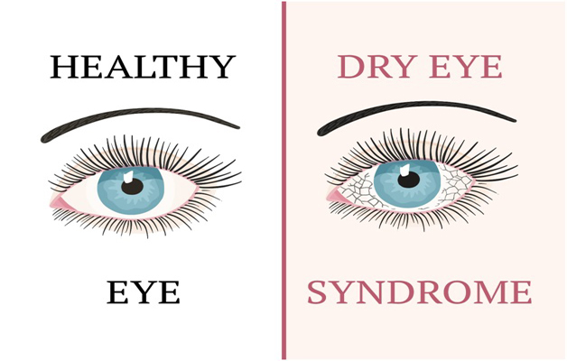 Do you suffer either of Dry Eyes, Blepharitis MGD, Computer Vision Syndrome (CVS) and Demodex Infestation?